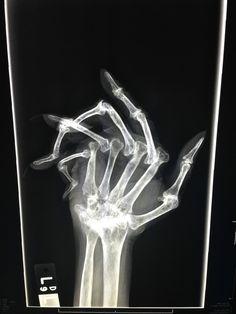 http://i.imgur.com/Css7WcH.jpg #hand #xray