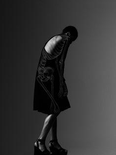 PHANTASMAGORIA #xray #haunched #skeleton #white #black #photography #slump #phantasmagoria #and #bones #hunch