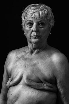 Breast Cancer, Huey Kidd