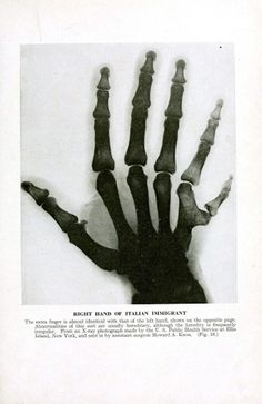 X-Ray-Hand-with-Extra-Finger.jpg (1218×1876) #finger #deformed #ray #hand
