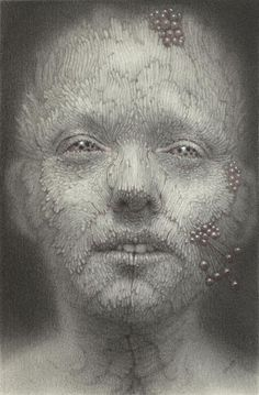 this isn't happiness™ (Does this look infected to you? Nathan Reidt), Peteski