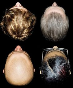 not all people are bald