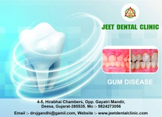 Best Gum disease service in Deesa. Did you ever have the feeling that people have avoided talking to you face to face? There is bleeding while you brush? Teeth that are sensitive to hot or cold? Gum disease is best service in Deesa. Call at +91 9824273056 or visit us at jeetdentalclinic.com to book a Appointment with us. deesa #GUMDISEASE #dental #teeth #dr #Implants