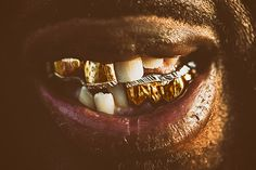 SHAMON CASSETTE on Behance #teeth #nasher #smile #photography #gold #grills #bling #mouth