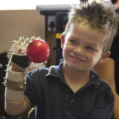 3D-printed Robohand helps children born without fingers #print #3d #fingers
