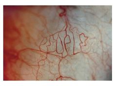 Don't judge people according to their appearance — Synaptic Stimuli #blood #vessel #typography