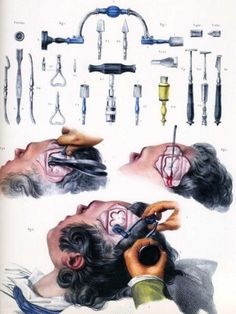 Morbid Anatomy #operation #head #illustration #stools #medical