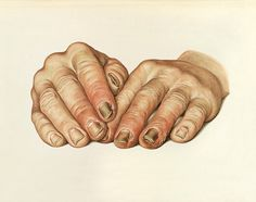 The hands of a patient , showing paronychia, an infection, an infection of the nails associated with tertiary syphilis. #morbid #hands #macabre #anatomical #anatomy #medicine #infection #illustration #vintage #study #nails #drawing