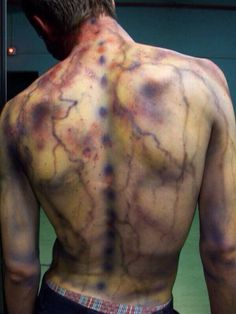 In case anyone wanted to know what a lightning strike can do to the body- given that they survive. #lightning strike #medical #skin