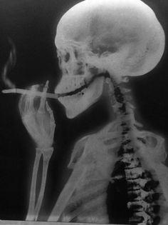 Balaclava #ray #smoking #skeleton #xray