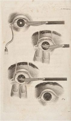 Morbid Anatomy: February 2010 #medical #eye #cut #etching