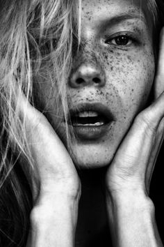freckle #photography #freckles