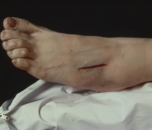 Andres Serrano, The Morgue (Rat Poison Suicide II), 1992 #foot #morgue #realism #figure #renaissance