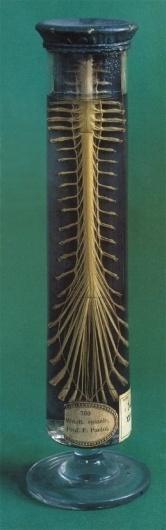 Morbid Anatomy: January 2009 #spine #photo #jar