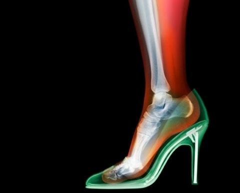 Des vêtements passés aux rayons X par Nick Veasey #woman #foot #shoe #ray #heel #bones