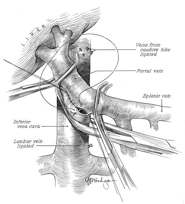 Gerald Hodge, Medical Illustrator #medicine #illustration #medical #drawing #science