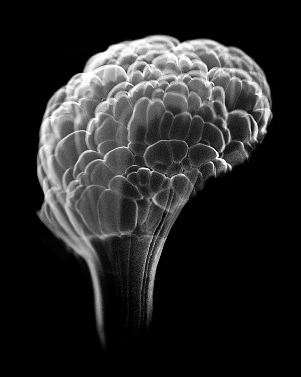 High Speed Photos of Combusting Alcohol Look like X Rays of the Human Brain #white #combustion #alcohol #anatomy #black #brain #ray #photography #fire #and