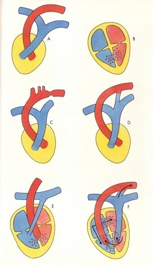 heart #heart #illustration #medical #textbook