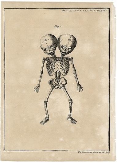 Morbid Anatomy #twins #illustration #medical