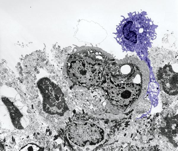 Front line Defenders via Cell Journal #science #biology