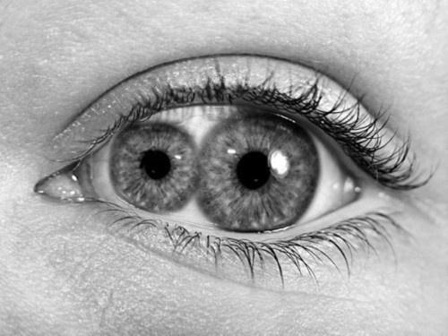 DeadFix » yeah its photoshoped #eyes