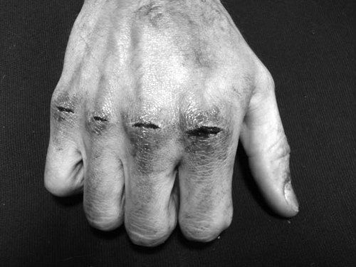 The Death of cool #split #knuckles